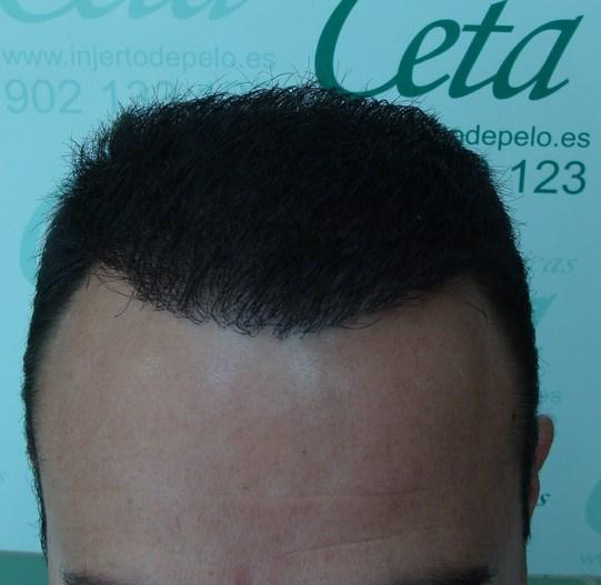 12-meses-1-tecnica-fue-ceta
