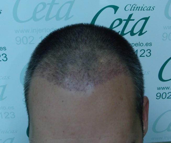 1-mes-tecnica-fue-ceta