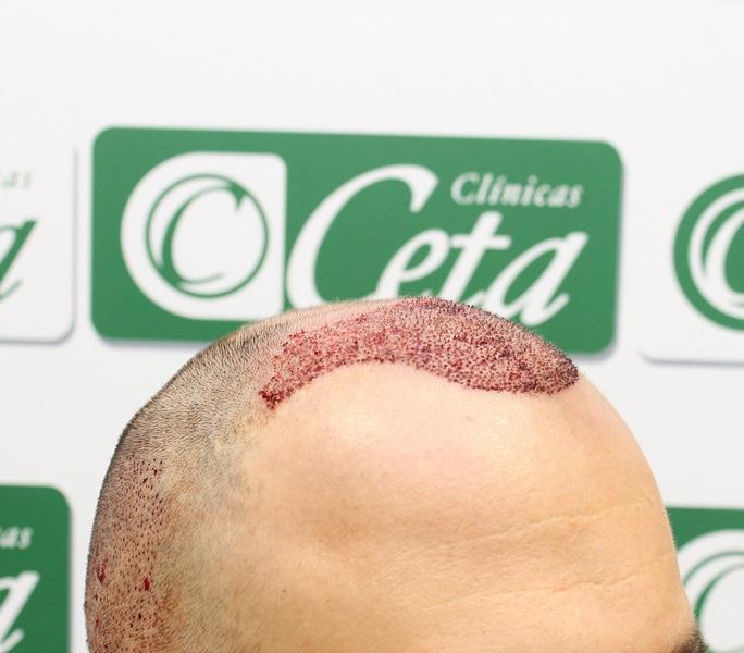 Clinicas-ceta-tecnica-fue