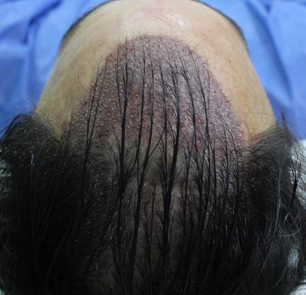 clinicas-ceta-tecnica-fue-cirugia2