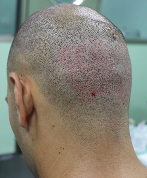 clinicas-ceta-tecnica-fue-cirugia6