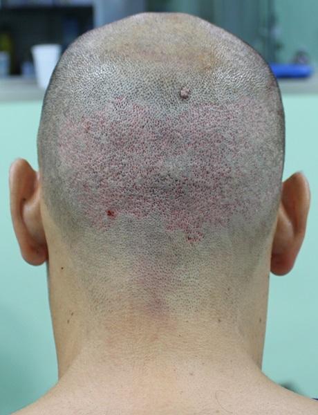 clinicas-ceta-tecnica-fue-cirugia7