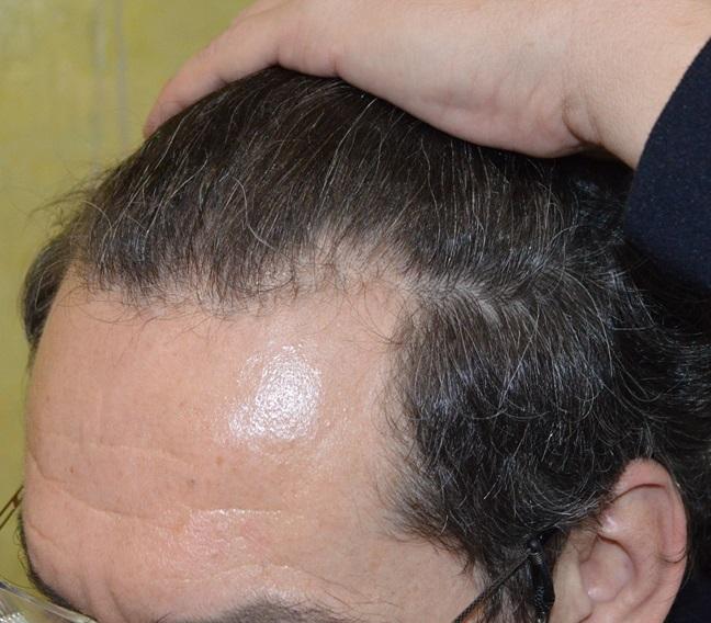 clinicas-ceta-tecnica-fue-previa2