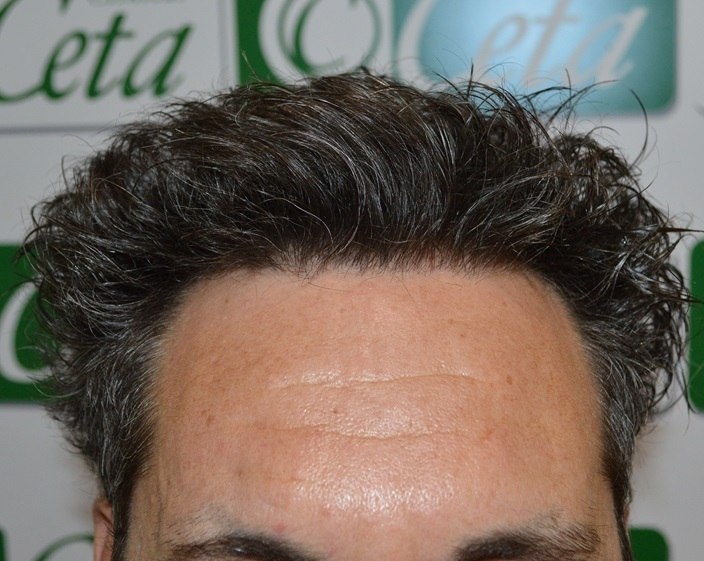 clinicas-ceta-tecnica-fue-4mes1