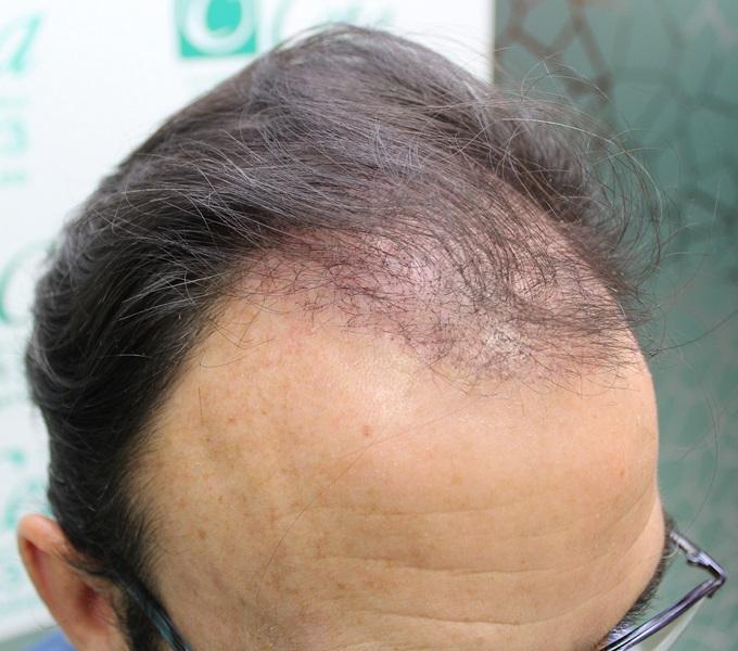 clinicas-ceta-tecnica-fue-1mes2