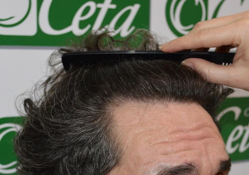 clinicas-ceta-tecnica-fue-12mes3