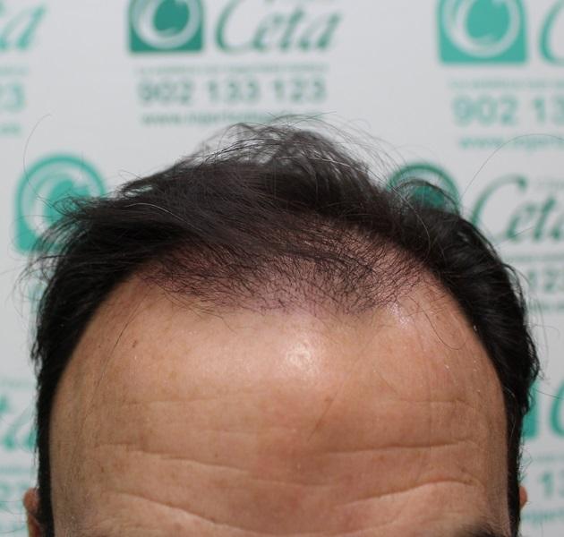 clinicas-ceta-tecnica-fue-1mes4