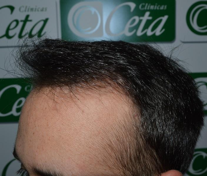 clinicas-ceta-tecnica-fue-8mes4