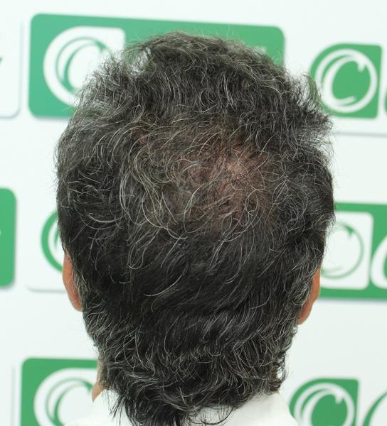 clinicas ceta - tecnica FUE