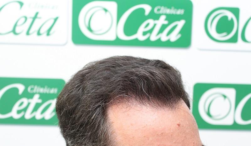 tecnica-fue-clinicas-ceta