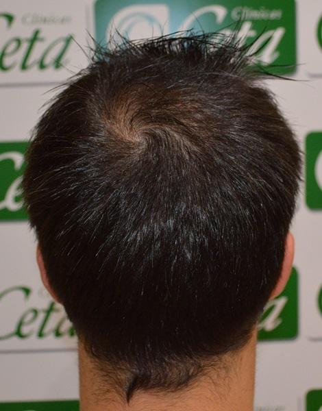 clinicas-ceta-tecnica-fue-8mes6
