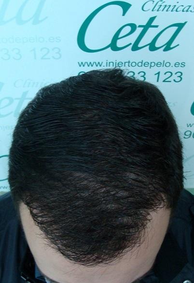 clinicas-ceta-tecnica-fue-12meses6