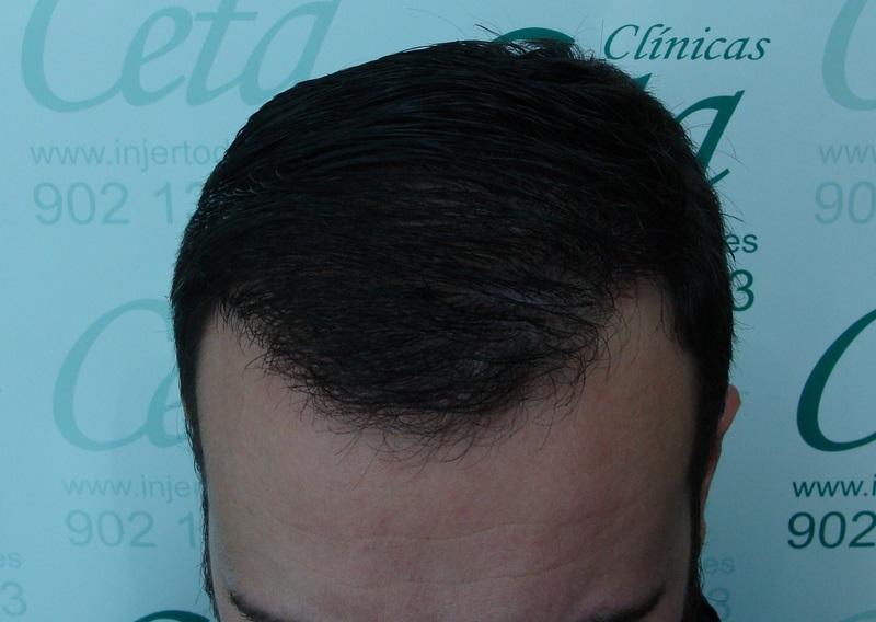 clinicas-ceta-tecnica-fue-12meses2