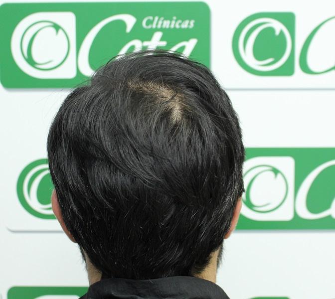 clinica-ceta-tecnica-fue