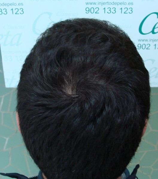 clinicas-ceta-tecnica-fue-12meses4