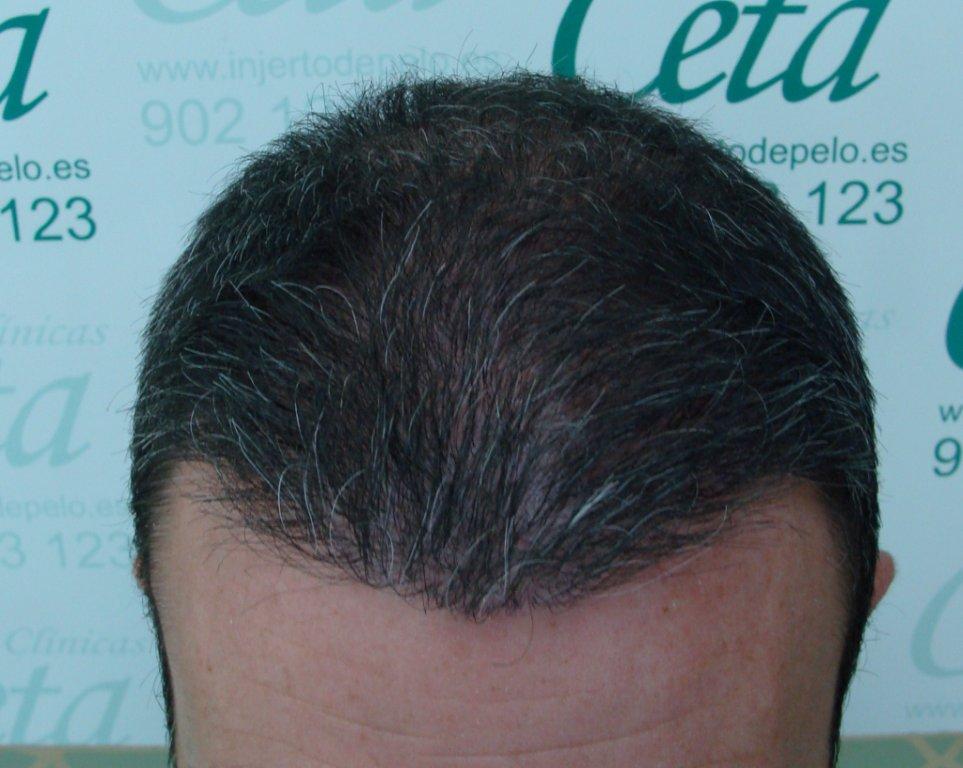 4-meses-2-tecnica-fue-ceta