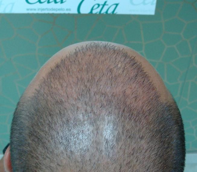 4-meses-4-tecnica-fue-ceta
