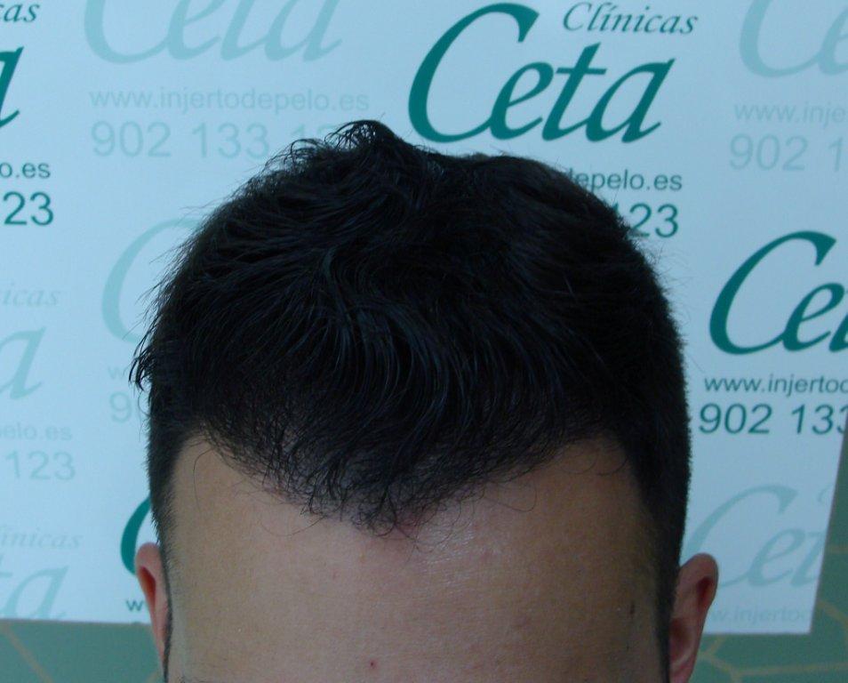 4-mes-2-tecnica-fue-ceta
