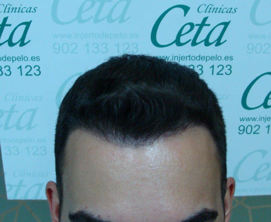 4-mes-3-tecnica-fue-ceta