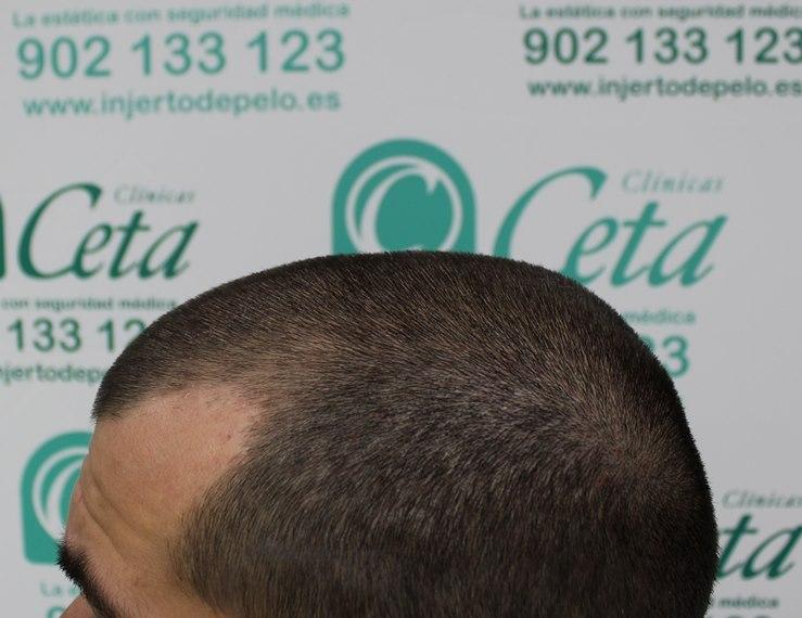 tecnica-FUE-Clinicas-Ceta-previa-4