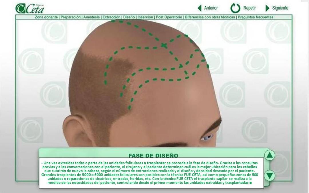 Resultados de la técnica de injerto de pelo Fue-Ceta