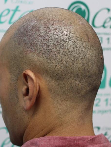 clinicas-ceta-tecnica-fue-previa1