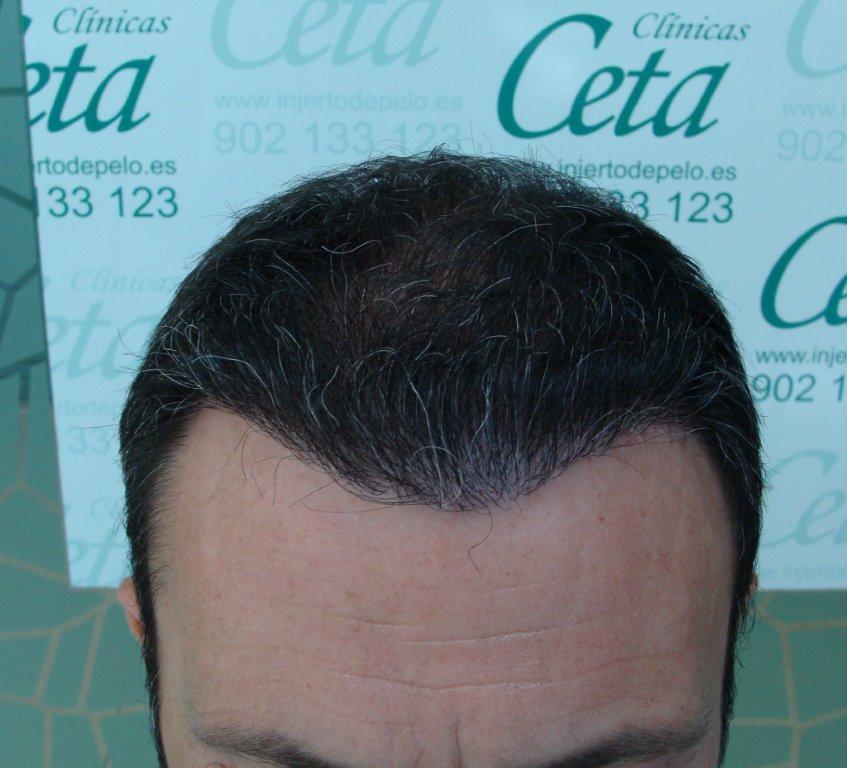 8-meses-2-tecnica-fue-ceta