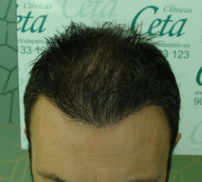 8-meses-3-tecnica-fue-ceta