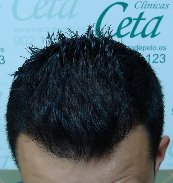 Пересадка 1750 фолликулов методом FUE-CETA
