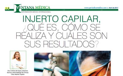 Injerto capilar en Clínicas Ceta- Periódico MegaMedical El Salvador