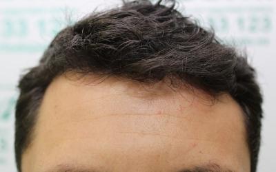 El injerto de pelo, no sólo en la cabeza. Otras aplicaciones efectivas del trasplante capilar.