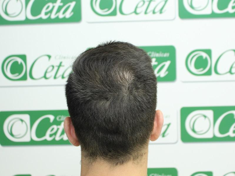 clinicas ceta - injerto capilar