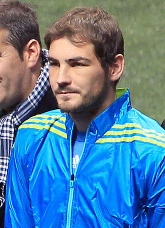 Iker Casillas cara hinchada
