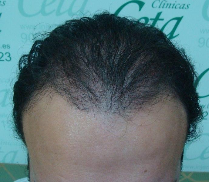 tecnica-FUE-Clinicas-Ceta-1