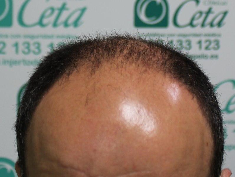 tecnica-FUE-Clinicas-Ceta-previa4