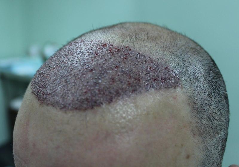 tecnica-FUE-Clinicas-Ceta-cirugia3