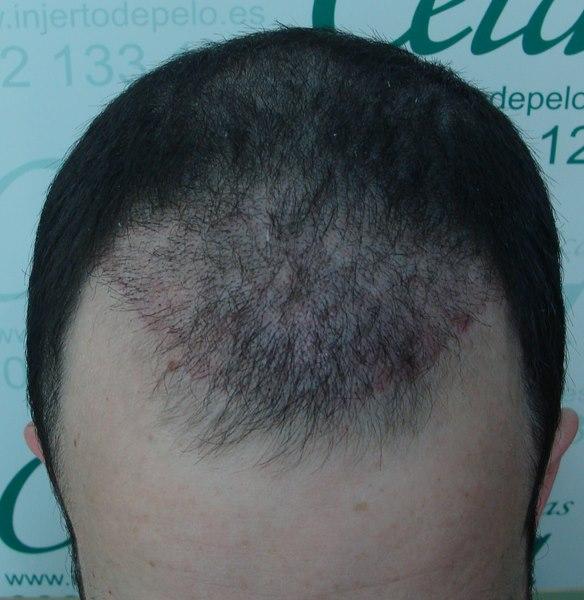 tecnica-FUE-Clinicas-Ceta-1mes-2