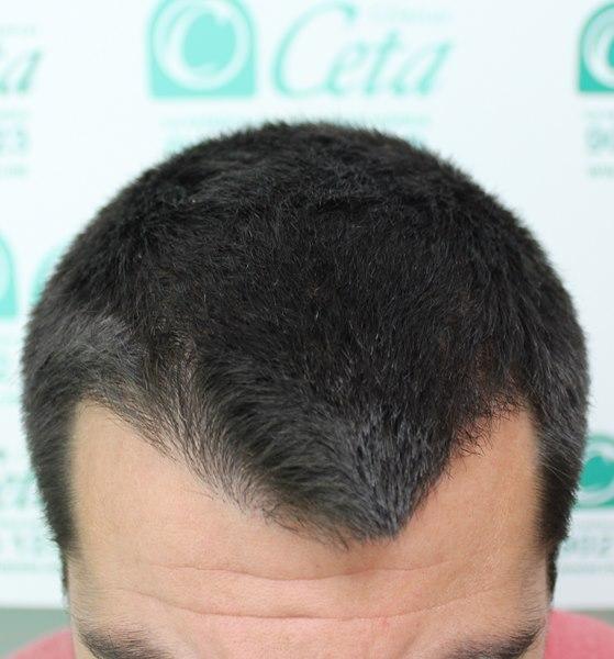 tecnica-FUE-Clinicas-Ceta-4meses2