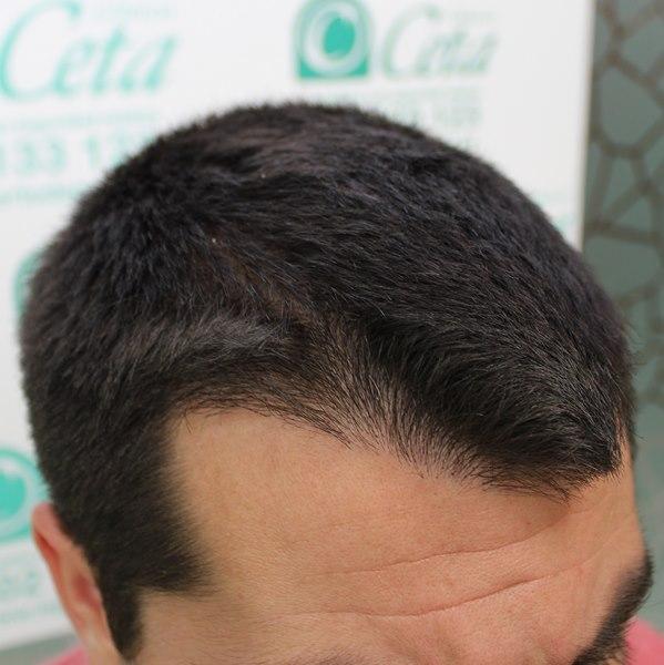 tecnica-FUE-Clinicas-Ceta-4meses3