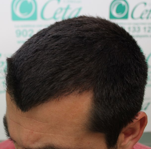 tecnica-FUE-Clinicas-Ceta-4meses1