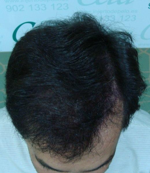 tecnica-FUE-Clinicas-Ceta-8meses-2