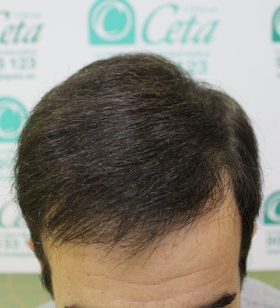 tecnica-FUE-Clinicas-Ceta-8meses-3