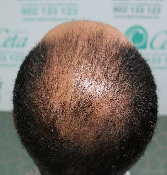 tecnica-FUE-Clinicas-Ceta-previa2