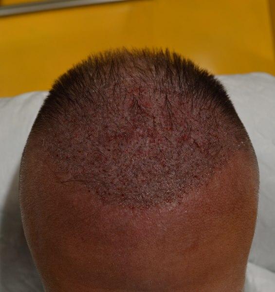 tecnica-FUE-Clinicas-Ceta-cirugia-3