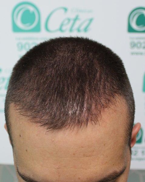 tecnica-FUE-Clinicas-Ceta-3