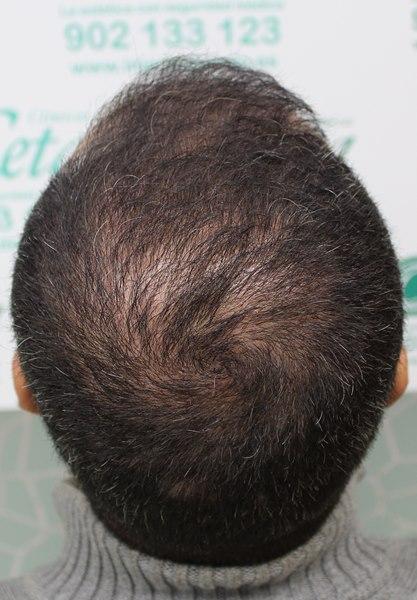 tecnica-FUE-Clinicas-Ceta-5meses-1