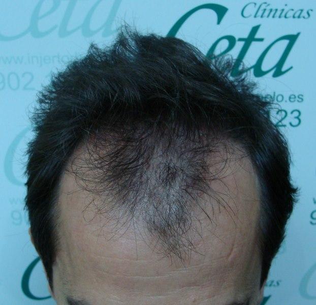 tecnica-FUE-Clinicas-Ceta-previa-2