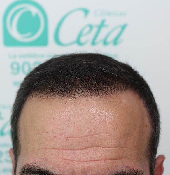 tecnica-FUE-Clinicas-Ceta-12meses-1