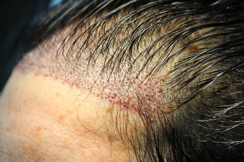 tecnica-FUE-Clinicas-Ceta-cirugia-2