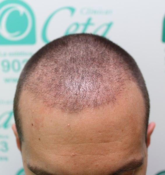 tecnica-FUE-Clinicas-Ceta-5
